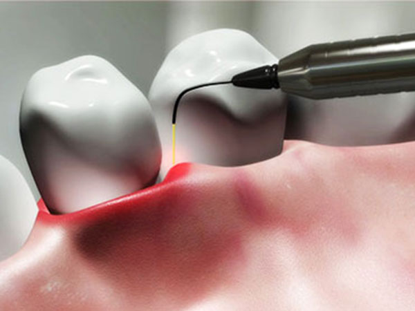 Dental Clinic in Malaysia | Dentist in Klang Valley - Tiew