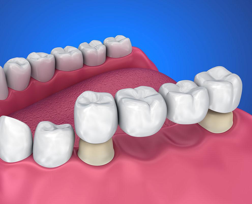 Dental Bridge Price Kuala Lumpur Malaysia