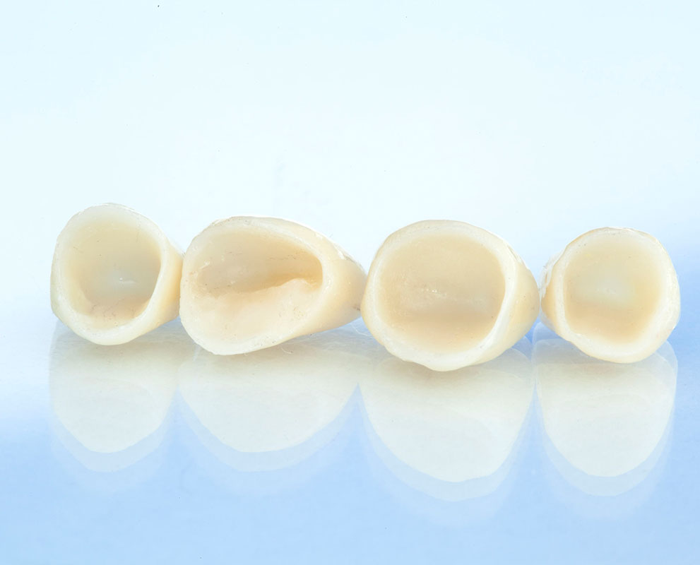 Dental Tooth Crown Kuala Lumpur Malaysia