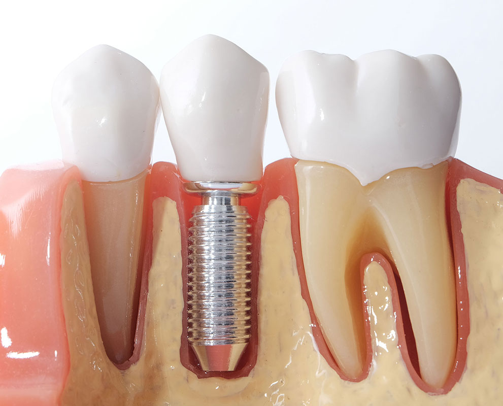 Teeth Treatment in KL | Tooth Implants Kuala Lumpur | Tooth Implants Malaysia