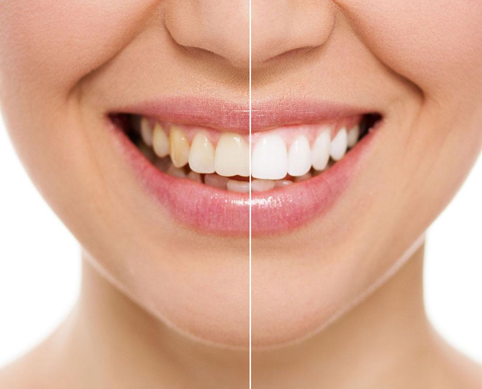 Teeth Whitening Kuala Lumpur Malaysia